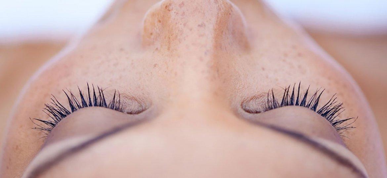 hiperpigmentacija-2