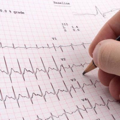 Kardiologija-thegem-person Poliklinika